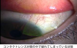 コンタクトレンズが眼の中で破れてしまっている状態